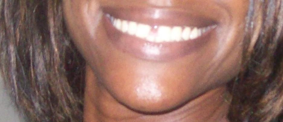 Invisalign Before And After Gap Getting rid of my gap ...