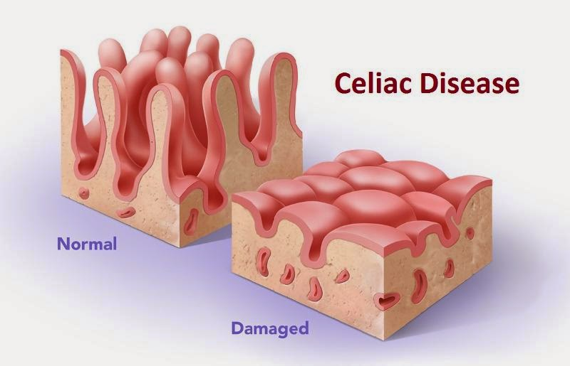 Celiac Disease - Opportunity Analysis and Forecast to 2023