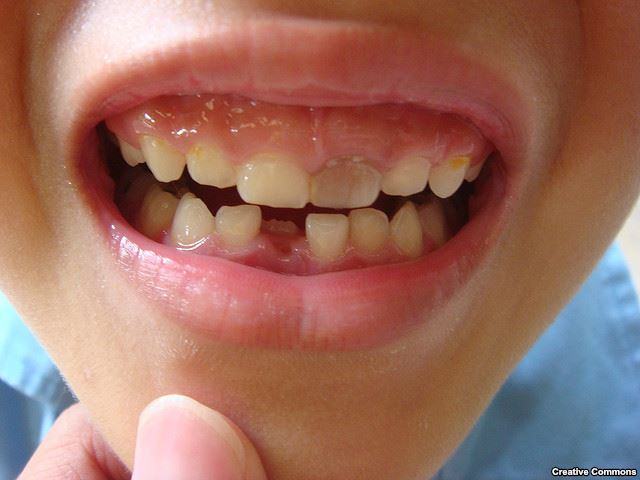 Urine Used To Create Teeth - Stem Cell Success