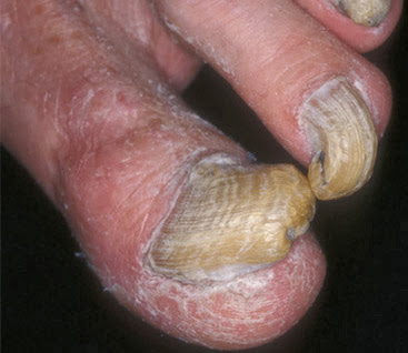 Infections fungal nail - cause and effect of fungal nail infections