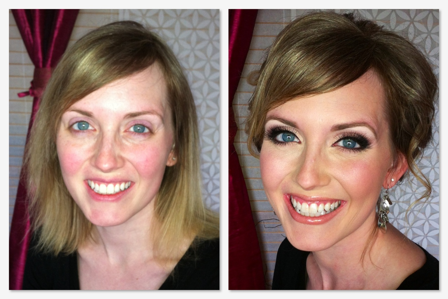 moon face steroid use