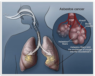 Why You Should Go for Asbestos Lungs Cancer Test