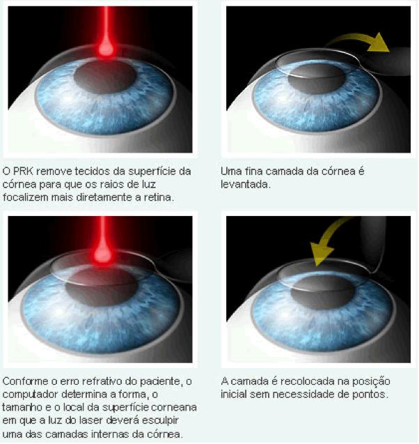 Ilustração de um passo-a-passo da operação a laser nos olhos : um primeiro laser remove tecidos da superfície da córnea, então outro laser é disparado nos olhos para que sejam feitas as correções necessárias.