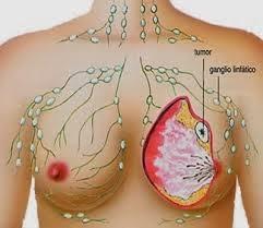 Cara Tradisional Sembuhkan Penyakit Kanker Payudara