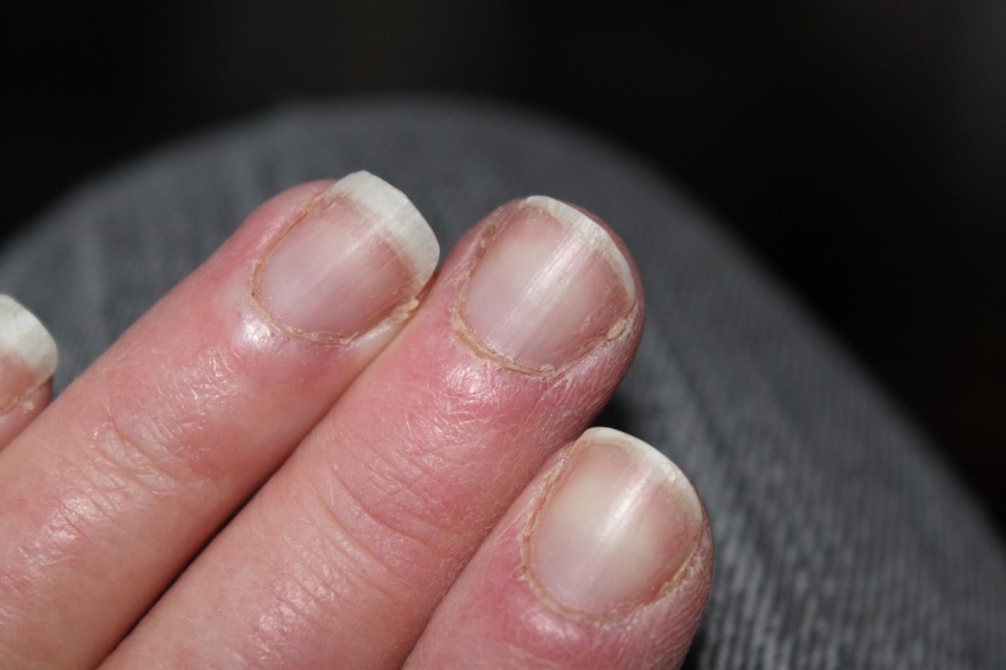 Toe Nail Peeling From Cuticle - Nails Gallery