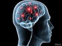 Diseases Above the Neck - Alzheimer's