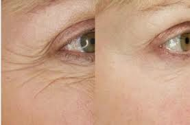 REMOVE WRINKLE WITH EASY HOME REMEDIES