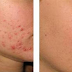 Fractora Skin Resurfacing is a solution to rejuvenating damaged skin - Naples Florida
