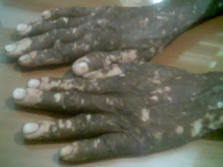 Vitiligo, வெண் நோய்