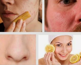 6 Cara Mengecilkan Pori-pori Wajah