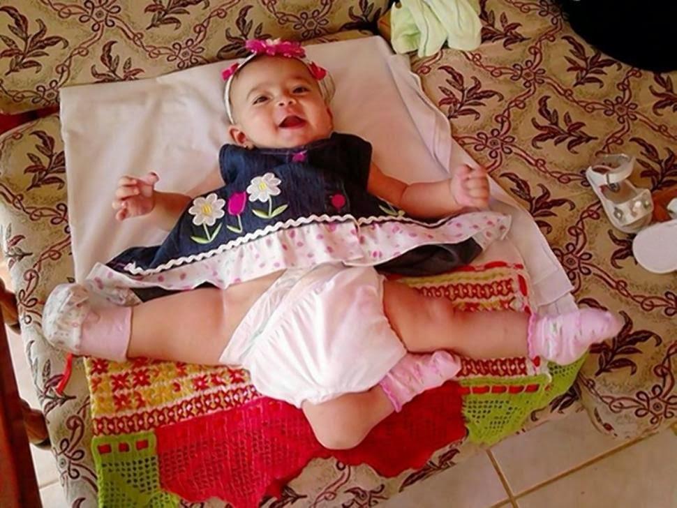 Bayi Ana Paula Berkaki Tiga Bakal Jalani Pembedahan