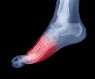 عندما أقدامنا الشتاء!!!! foot_pain.jpg