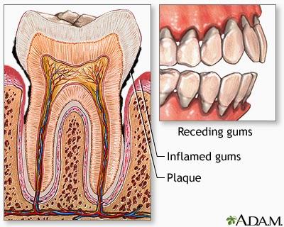 remedios caseros gingivitis