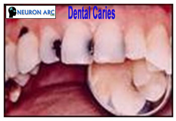 Dental Caries : Definition, Causes of Dental Caries