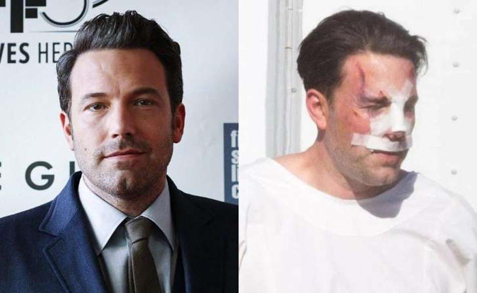 Ben Affleck ¿transforma su rostro con cirugía?