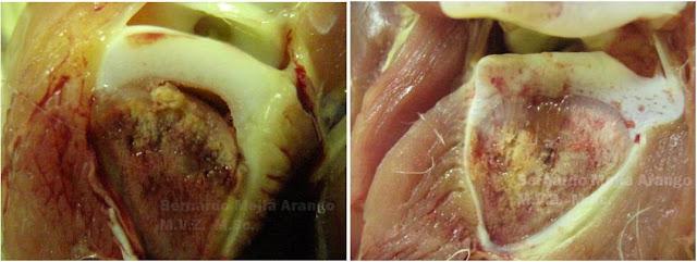 Los indicios de la hernia de la columna vertebral del departamento lumbar el tratamiento