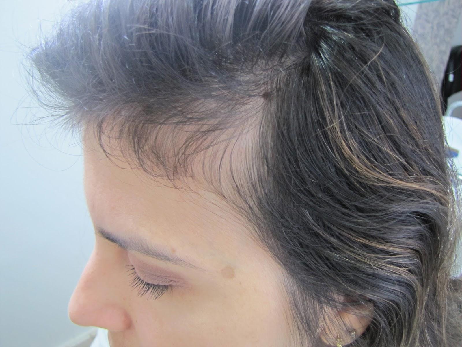 As máscaras operacionais de rápido crescimento de cabelo