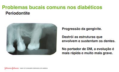 periodontite, diabetes, doenças comuns