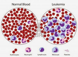 Leukemia Symptoms, Types, Causes, Diagnosis, Treatments, Prevention, Nutritions, Cure