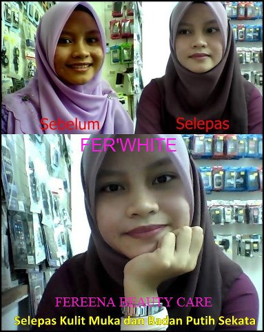 Noor Beauty Online Shop: Testimoni Fer'White L-Glutathione Collagen