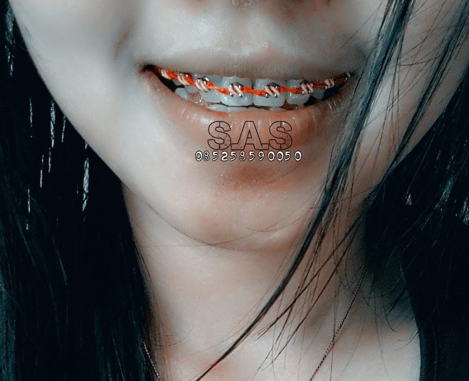 http://ahli-pasang-gigi.blogspot.com/2014/05/spesial-pic-dari-sahabat-sas-untuk-sas.html