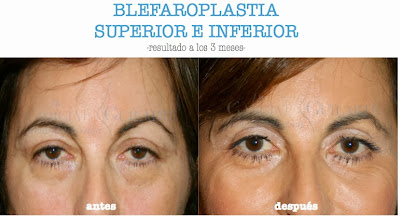blefaroplastia_operacion_cirugia_parpados