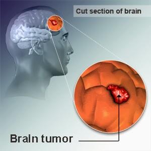 Cara Cepat Menyembuhkan Penyakit Kanker Otak