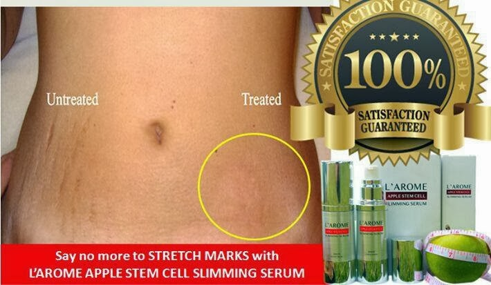 Bob2e Indonesia: L'AROME - Apple Stem Cell Slimming Serum