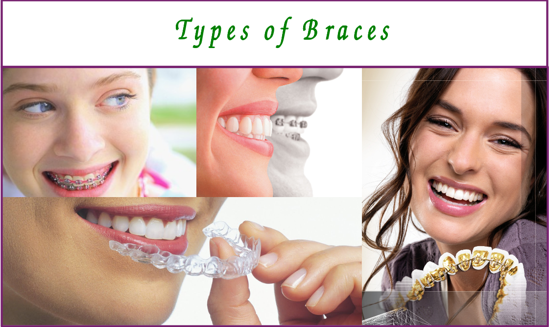 types of orthodontic braces in bangalore