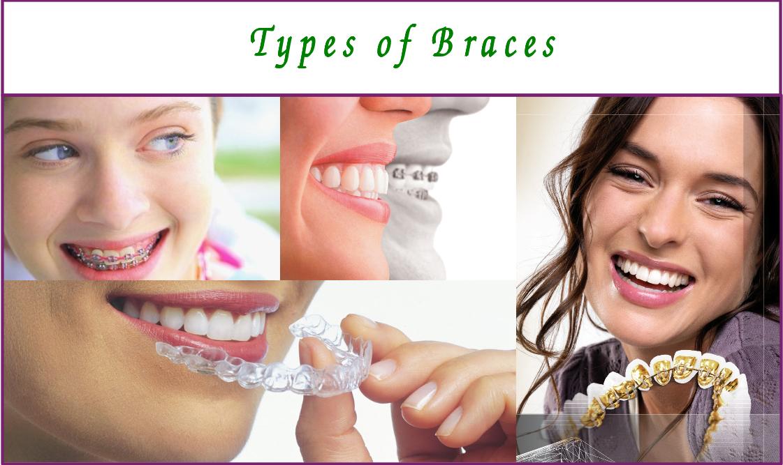 types of orthodontic braces in bangalore
