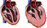 Miocardiopatia Hipertrofica