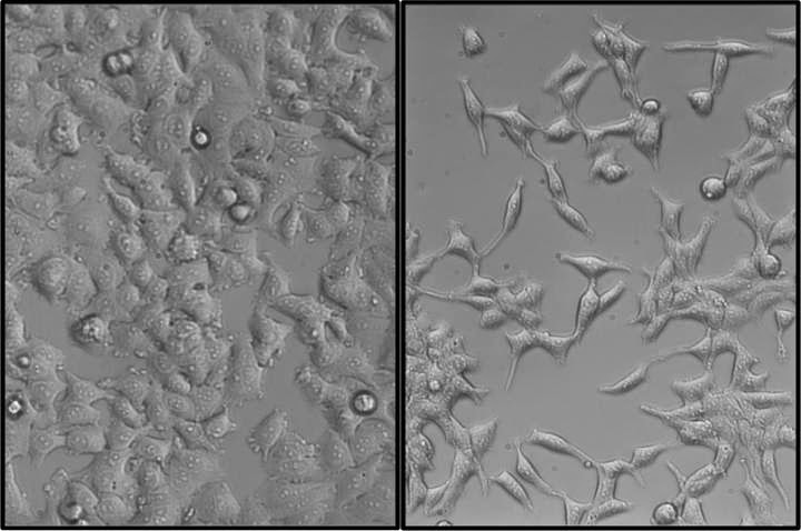Pictured are MCF-7 human breast cancer cells, stably transformed with SNAIL (right) or an empty vector control (left). Cells expressing SNAIL show an increased mesenchymal phenotype and malignant characteristics. The control cells display a cobblestone morphology, whereas cells overexpressing SNAIL are more elongated.