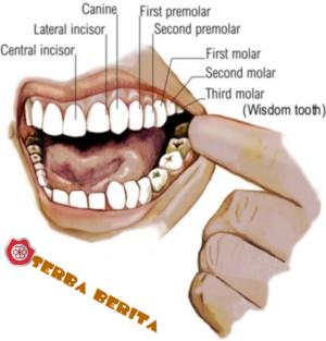 Menghilangkan Sakit Gigi