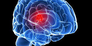 Critical Genes Responsible For Brain Tumor Growth Identified