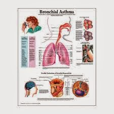 asthma symptoms diagnosis and treatment Eosinophilic asthma is a type of severe asthma it is caused by high levels of certain white blood cells we look at symptoms and treatments.