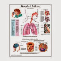 Bronchial Asthma: Signs, Symptoms, Causes, Diagnosis, Treatment and Natural Remedies