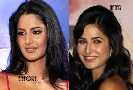 Katrina Kaif Before And After Nose Katrina Kaif Before After