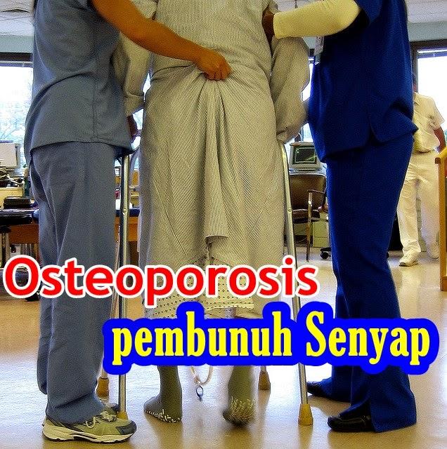 Osteoporosis Pembunuh Senyap