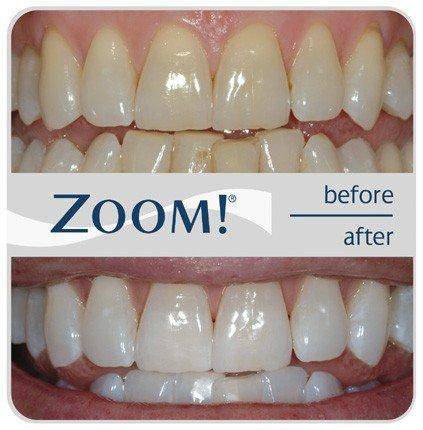 Info Info Bermanfaat 6 Cara Ampuh Membuat Gigi Jadi Lebih Putih