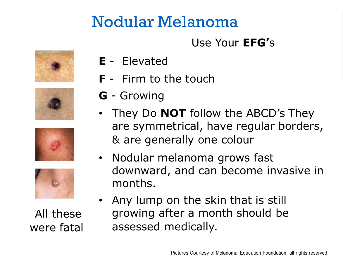 Just found out i have nodular melanoma and scared to death ...