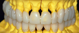encerado diagnostico rehabilitacion oral