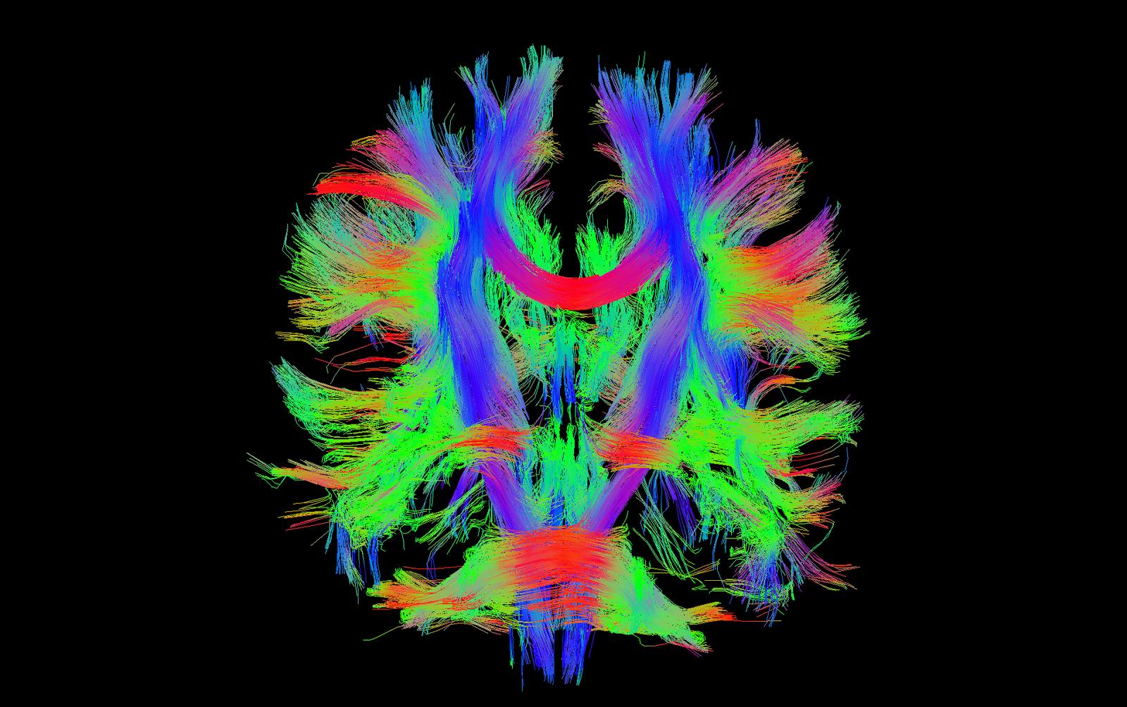 White Matter Brain of a Brain 39 s White Matter