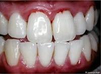 sangrado de encias gingivitis