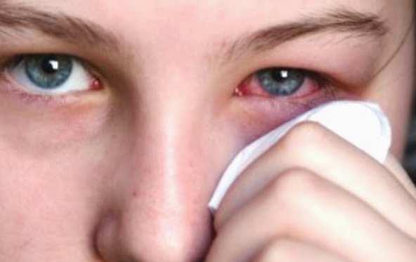 Cara Merawat Mata Bintitan