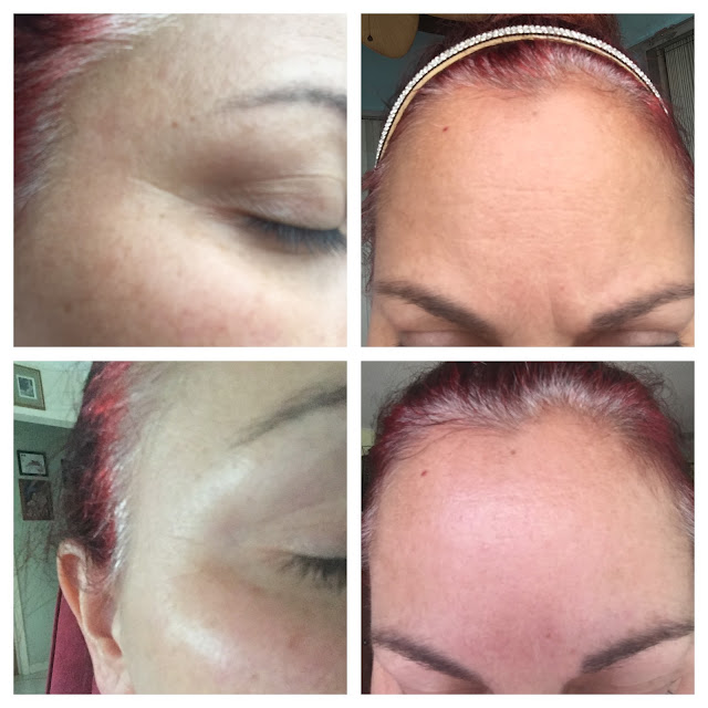 Furlesse Wrinkle Patches before and after images