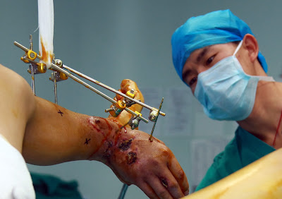 Hand, Health, Ankle, Hospital, China, Operation, Doctor, Graft, Accident, Borrow, Arm, Changsha, Hunan, Man, Save,