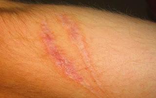Cara Ampuh&Mudah Menghilangkan Bekas Luka, cara cepat dan ampuh menghilangkan bekas luka