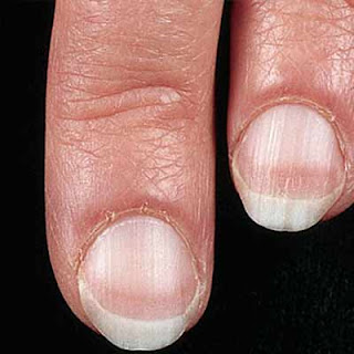 Healt and Other information: 9 Nail Colors Indicate That ...