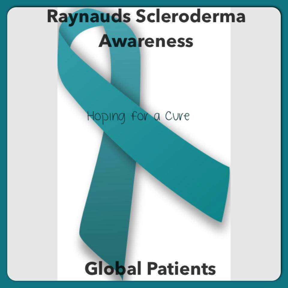 Raynauds Scleroderma