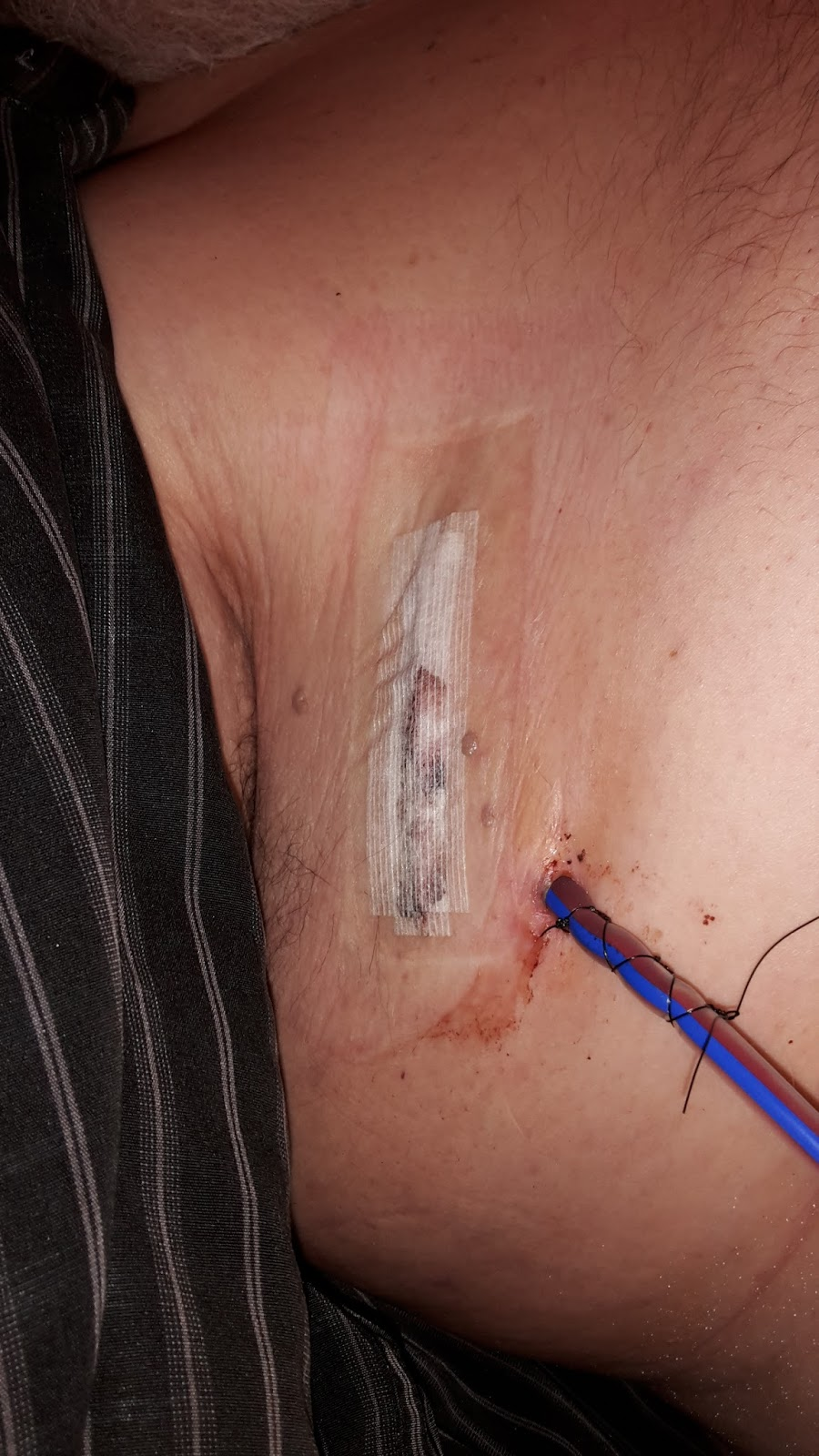 Merkel Cell Carcinoma On The Bayou Beginning The Treatment For Mcc